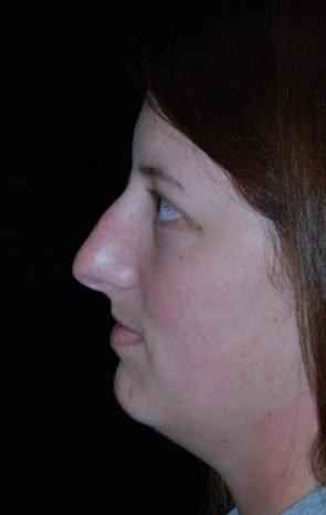 Rhinoplasty & Neck Liposuction Case 1