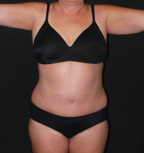 Tummy Tuck & Liposuction Case 10