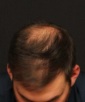 Hair Restoration Case 101