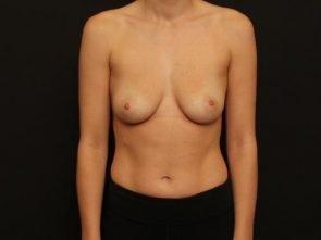 Breast Augmentation Case 106