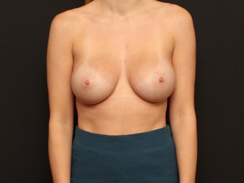 Breast Augmentation Case 106