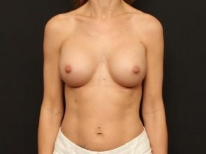 Breast Augmentation with Fat Transfer case 107