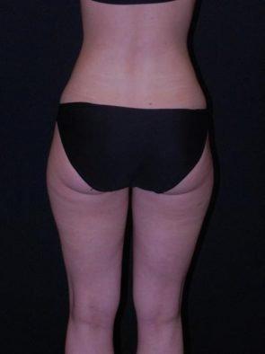 Liposuction Case 11