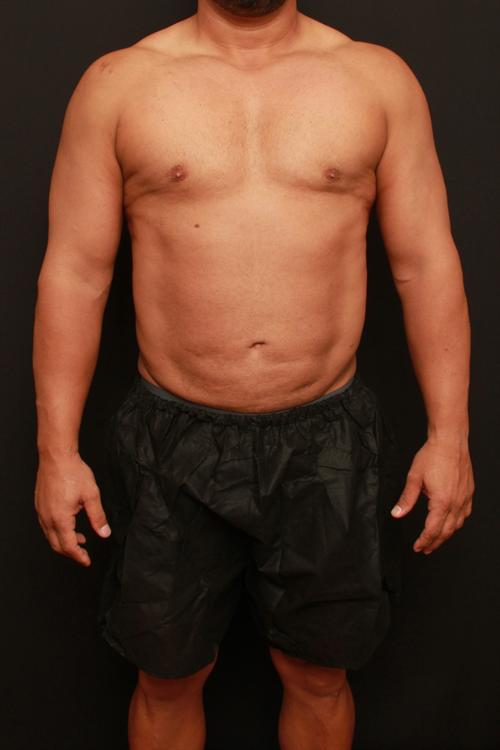 Liposuction Case 113