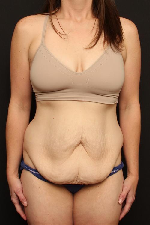 Tummy Tuck & Liposuction Case 111