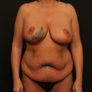 Mommy Makeover Case 120