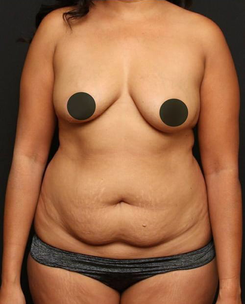 Tummy Tuck Case 121
