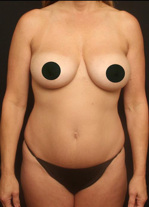 Liposuction Case 125