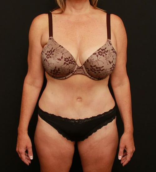 Tummy Tuck & Liposuction Case 130