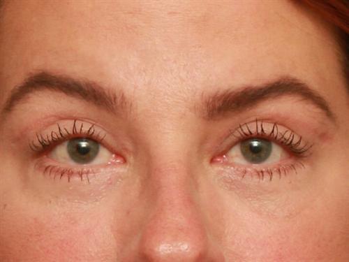 Eyelid Surgery Case 134