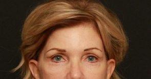 Eyelid Surgery Case 137