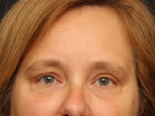 Eyelid Surgery Case 138