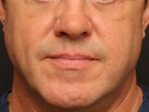 Eyelid Surgery Case 139