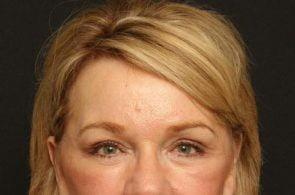 Eyelid Surgery Case 141