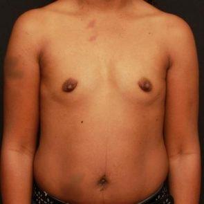 Breast Augmentation Case 145