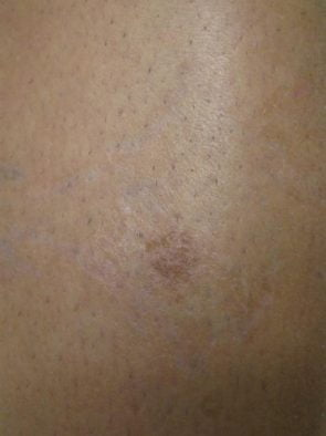 Tattoo Removal Case 15