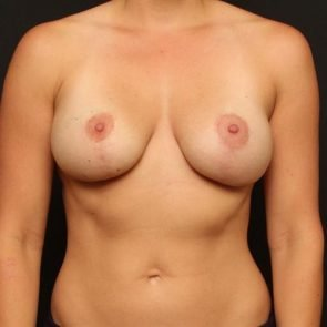 Breast Lift Case 150