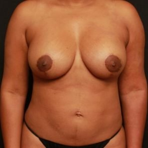Breast Lift Case 151