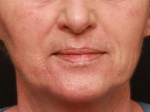 Laser Skin Resurfacing Case 162
