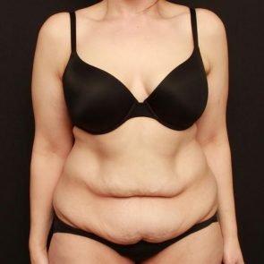 Tummy Tuck Case 165