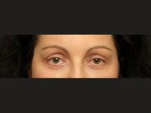 Eyelid Surgery Case 166