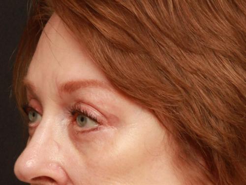 Eyelid Surgery Case 169