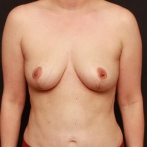 Breast Lift Case 171