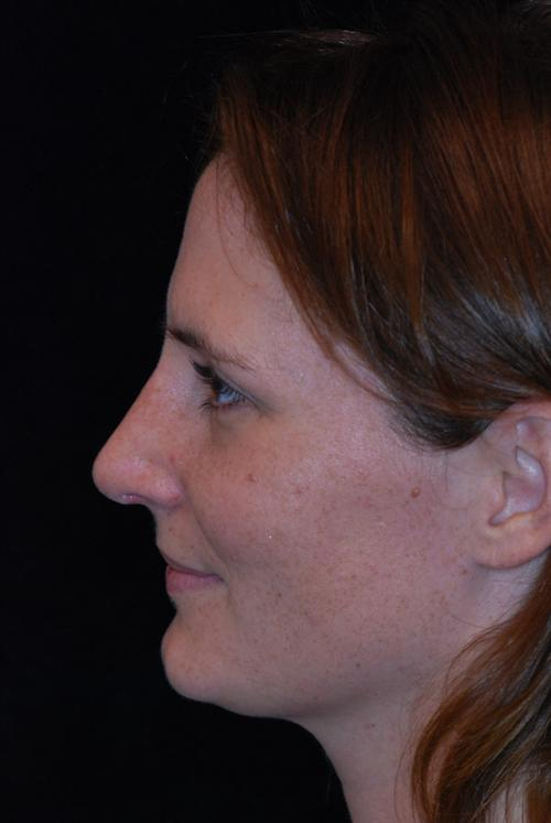 Rhinoplasty Case 18