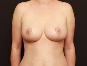 Breast Lift Case 182