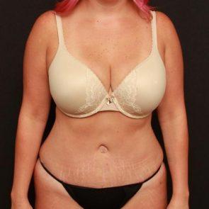 Tummy Tuck & Liposuction Case 183