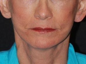 Laser Skin Resurfacing Case 19