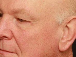 Eyelid Surgery Case 190