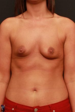 Breast Augmentation Case 192