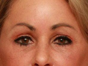 Eyelid Surgery Case 195