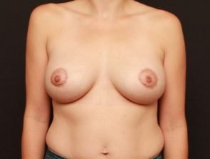 Breast Lift with Implants Case 197