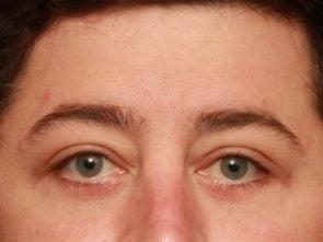 Eyelid Surgery Case 198