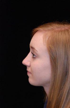 Rhinoplasty Case 2