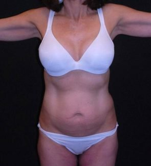 Tummy Tuck & Liposuction Case 20