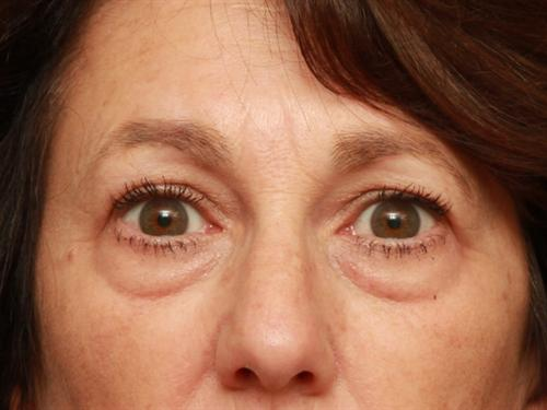 Eyelid Surgery Case 200