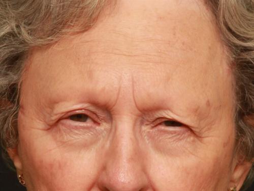 Eyelid Surgery Case 202