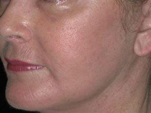 Facial Fat Transfer Case 204