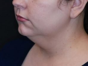 Neck Lift with Liposuction Case 21