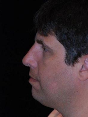 Rhinoplasty Case 22