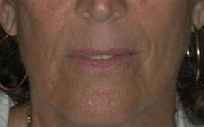 Laser Skin Resurfacing Case 23