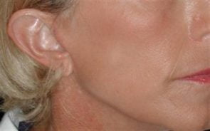 Laser Skin Resurfacing Case 24
