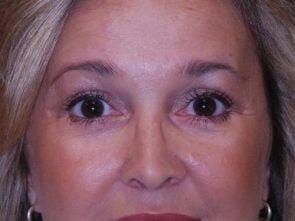 Eyelid Surgery Case 25