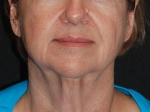 Laser Skin Resurfacing Case 31