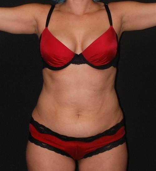 Tummy Tuck & Liposuction Case 38