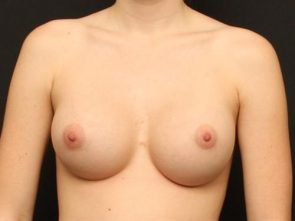Breast Augmentation Case 39