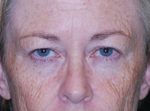 Eyelid Surgery Case 4
